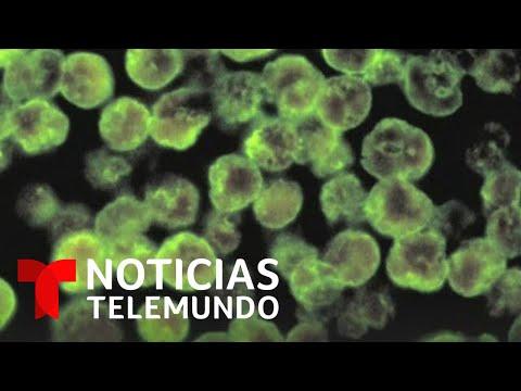 Varias ciudades de Texas en alerta a causa de la ameba come-cerebros | Noticias Telemundo