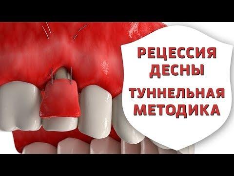 Как лечить оголившиеся корни зубов