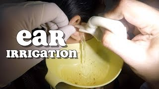 Woman's Earwax Removed by Ear Irrigation and Extraction