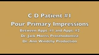 Video #5 C D Pt #1 Between Appt. #1 and #2 Pour Diag. Impressions & trim casts