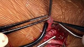 Brachiocephalic AV-Fistel - Schritt für Schritt