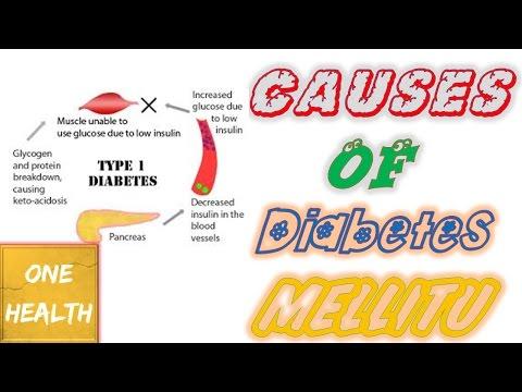 Causes of Diabetes mellitus  Type 1 - One Health