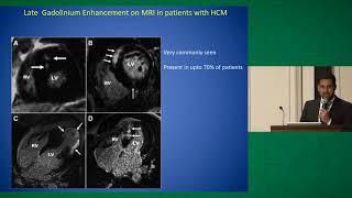 Ventricular Arrhythmias in Hypertrophic Cardiomyopathy