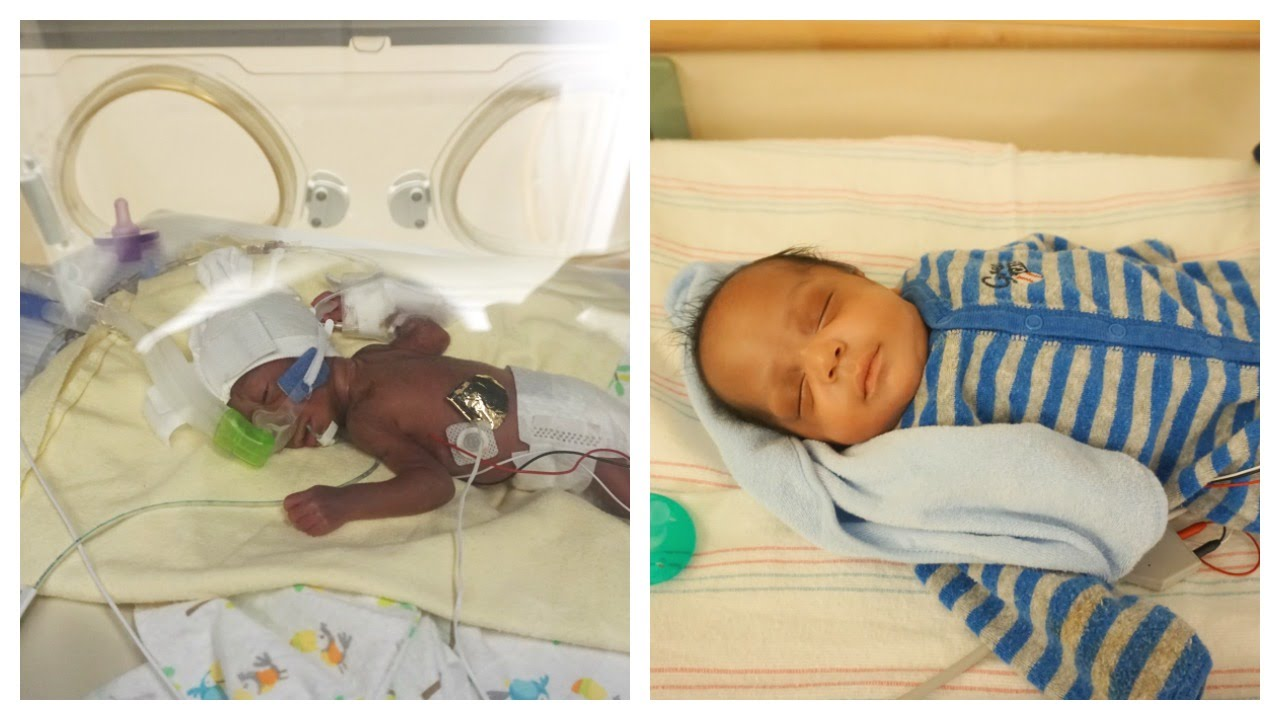 Born at 25 Weeks | NICU Journey | Micropreemie | Caleb Comes Home!!!! |  FrugalChicLife