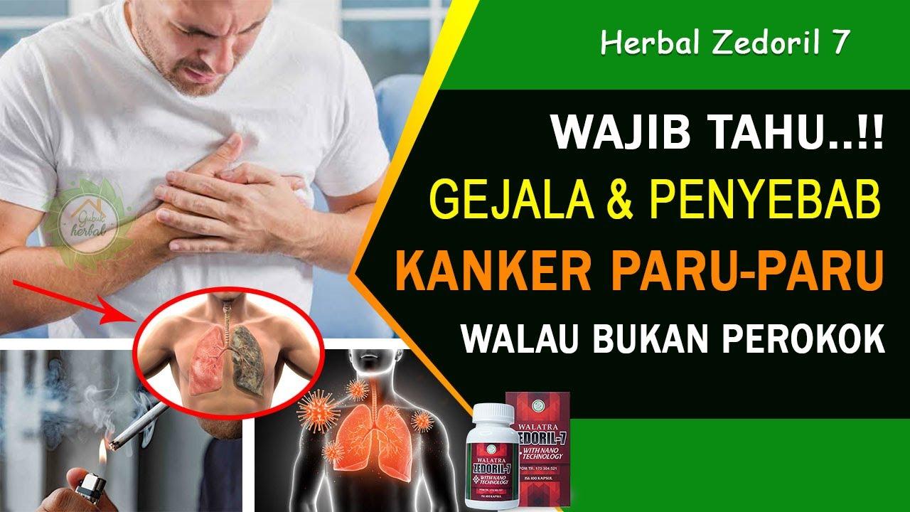 Gejala dan Penyebab Kanker Paru-paru - Walaupun Bukan ...