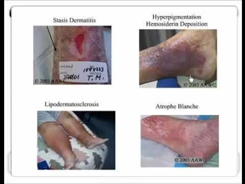 Venous Stasis & Arterial Ulcer Comparison - LHSC
