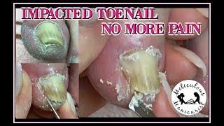 👣 Impacted vs. Ingrown Toenail Pressure Removed 👣👏