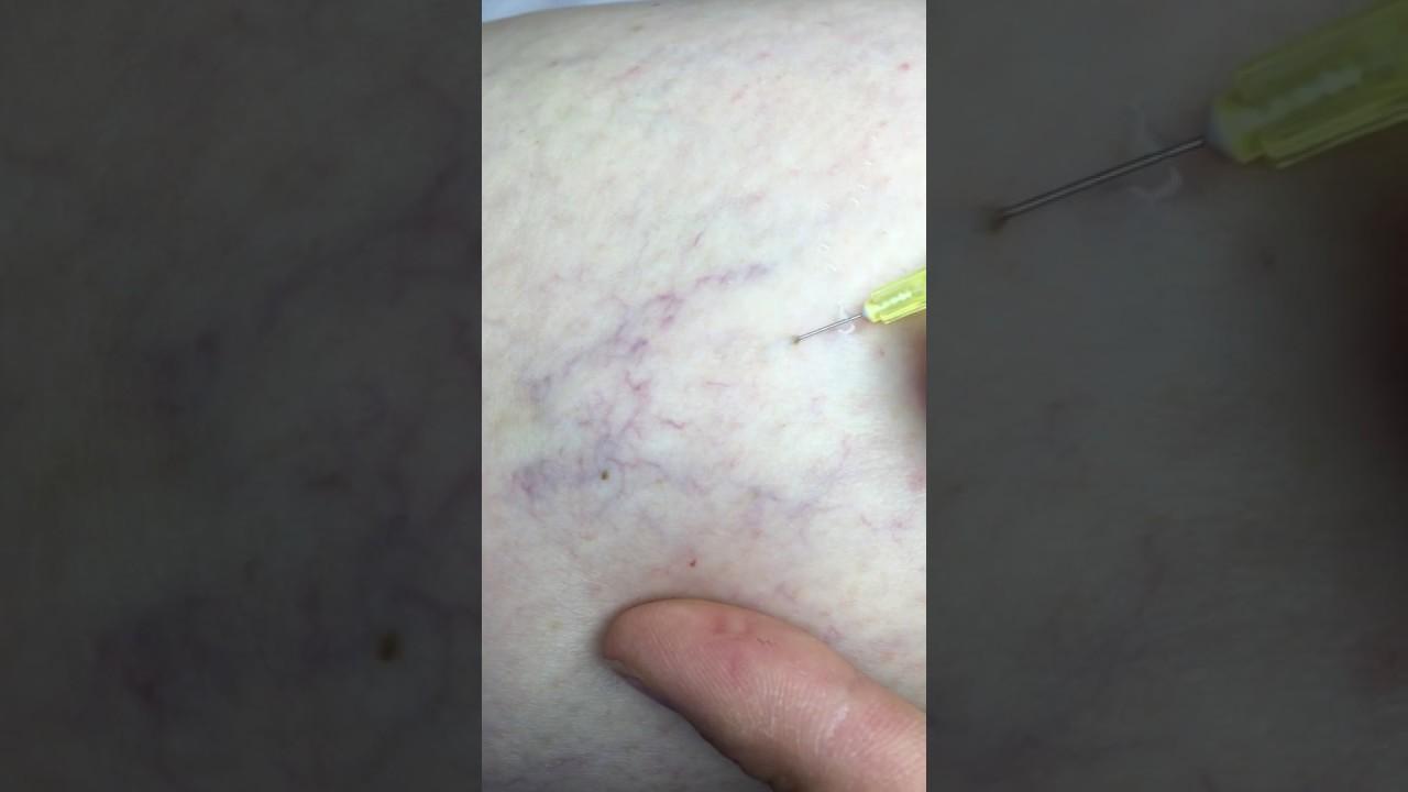 tratamentul varicosului varicoză zlatoust și