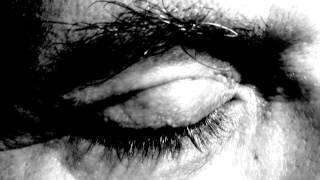Bruchlandung: Scene 1: Dem Glas Auge