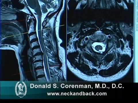 Cervical Central Stenosis Myelopathy Spine Surgeon