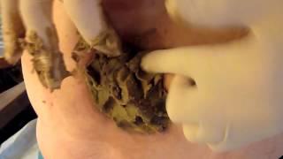 Repeat youtube video Mee-eter veroorzaakt geabcedeerde cyste bij diabetespatiënt