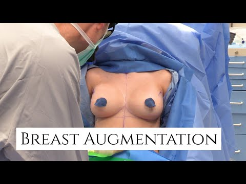 Breast Augmentation Surgery | Silicone Breast Implants | Beverly Hills Plastic Surgery