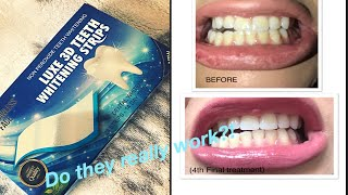 ebay Advanced teeth Whitening Strips Review