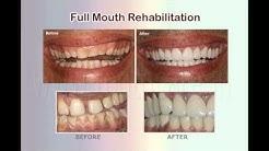 Dentist in Hyderabad | Best Dental Services in Hyderabad