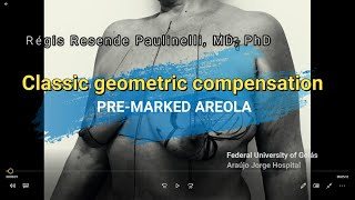 Classic geometric compensation - pre-marked areola