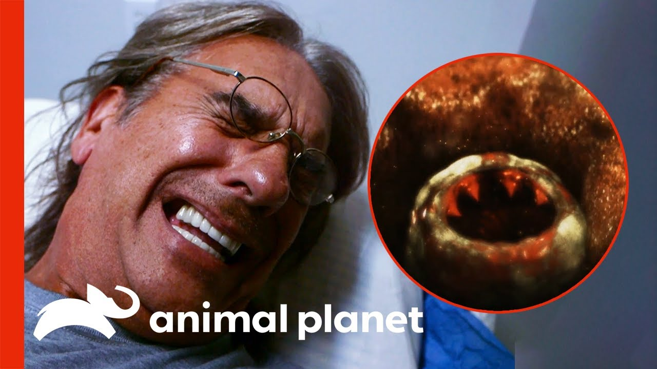 Download Sandfly Infects Man With A Deadly Parasite | Monsters Inside Me