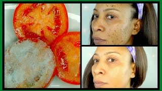 HOW TO GET RID OF DARK SPOTS ON FACE + BODY, CLEAR  ACNE SCARS IN 7 DAYS |Khichi Beauty