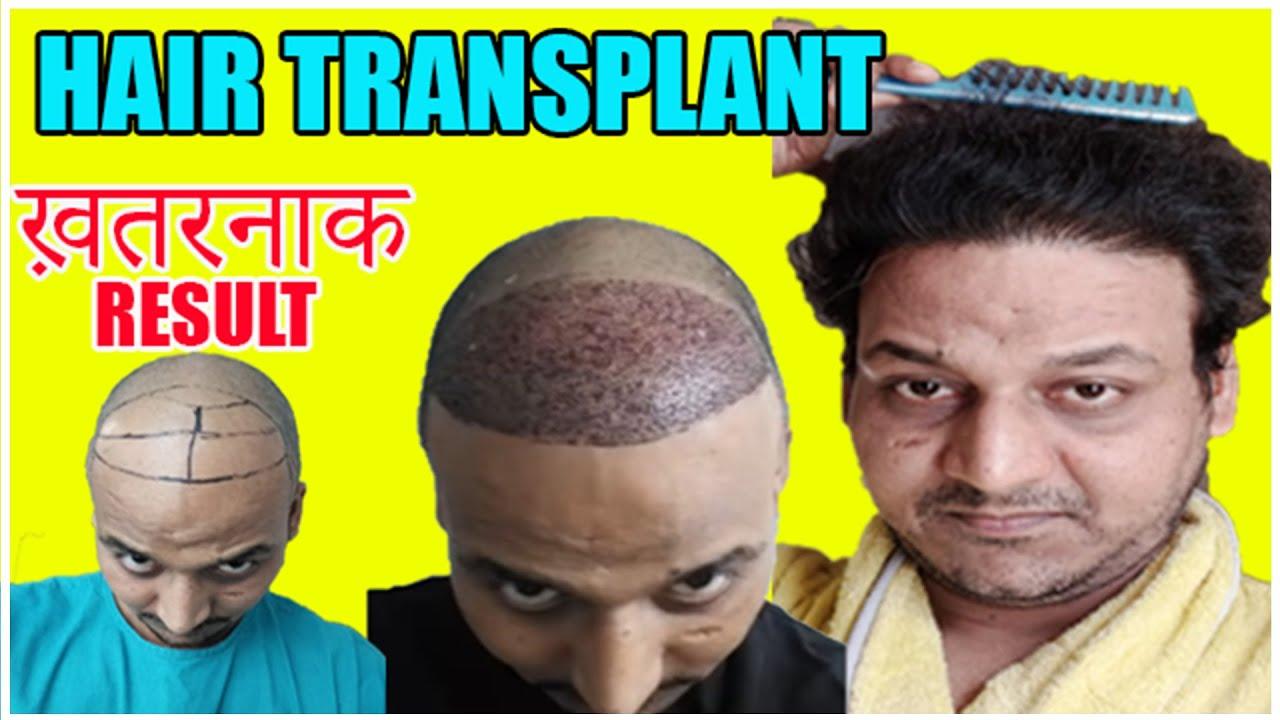 ये VIDEO देख ली तो आपके भी बाल आ जाएंगे | पूरी जानकारी | मेरे Hair Transplant का  RESULT (Part 2)|