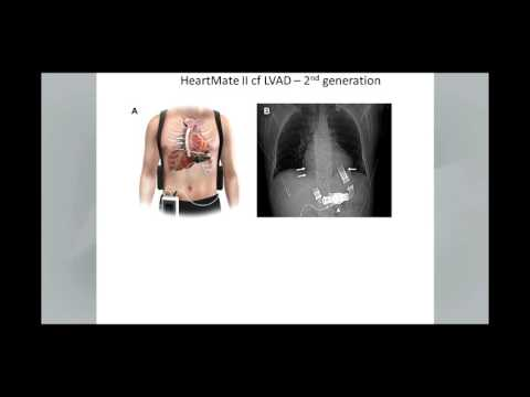 Echocardiography in the Management of Patients with Left Ventricular Assist Devices
