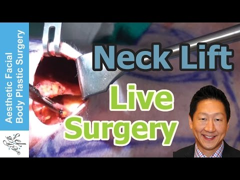 Live Plastic Surgery Video of a Neck Lift | Platysmaplasty by Dr. Philip Young Bellevue Seattle