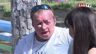 Мужчина без лица рассказал ЗабТВ историю своей жизни