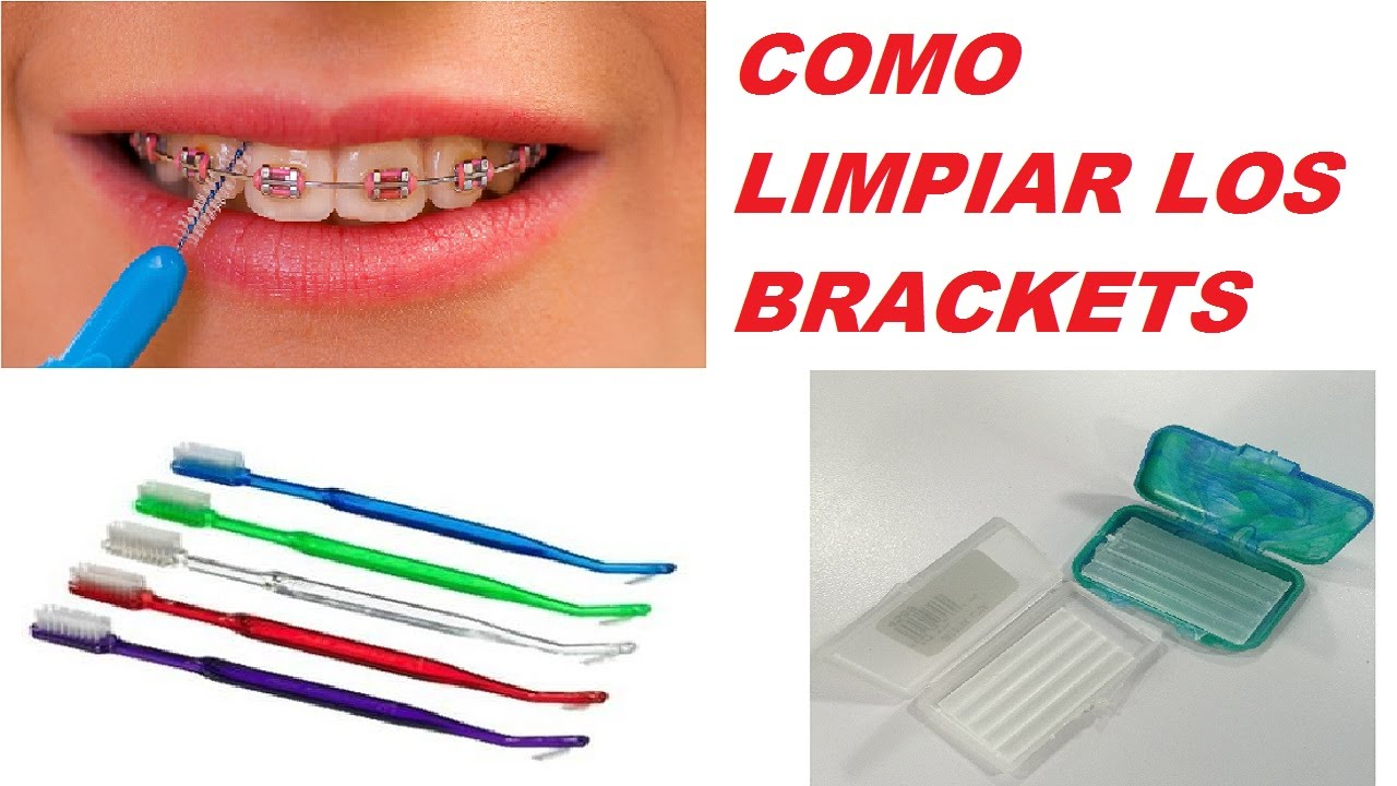 Como Limpiar Mis Dientes Con Brackets   How to Clean My Teeth Brackets -  YouTube 0b32e05c8364
