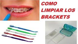 Como Limpiar Mis Dientes Con Brackets / How to Clean My Teeth Brackets