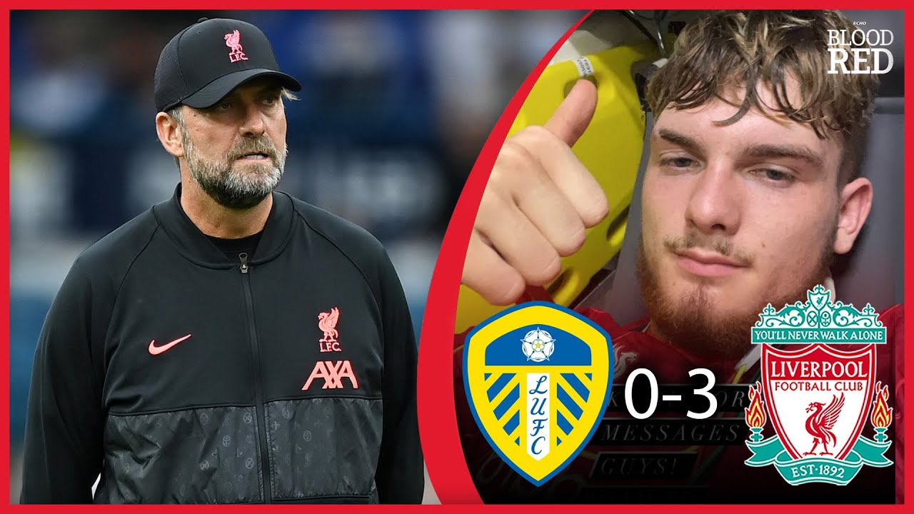 Latest News about Harvey Elliott Injury  | Jurgen Klopp Press Conference | Leeds Utd 0-3 Liverpool