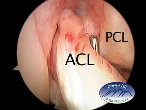 ACL Tears- Where do they occur and what do they look like.