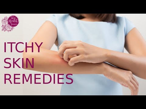 Home Remedies For Itchy Skin – 8 SHOCKING Eczema Treatments
