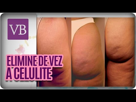 Eliminar de vez a Celulite- Você Bonita (01/06/16)