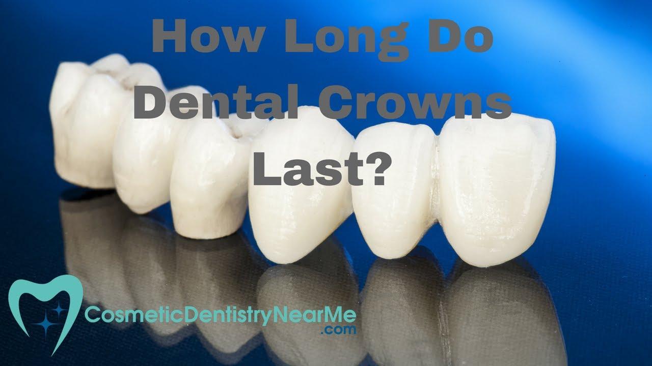 How Long do Dental Crowns Last? - YouTube