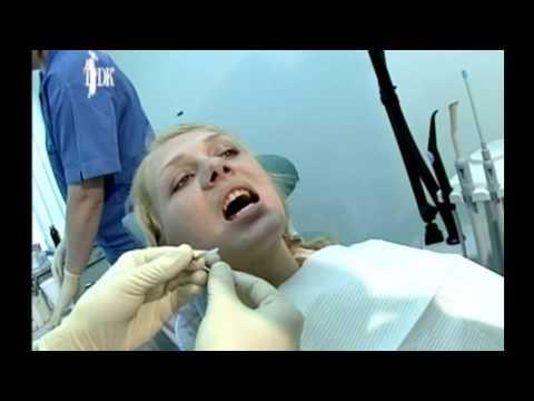 Стоматолог Дмитрий Потехин  о лечнии и протезировании зубов при сахарном диабете (ТДК)
