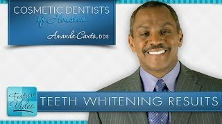 Teeth Whitening Results Thumbnail
