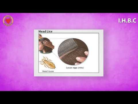 Head Pubic Lice