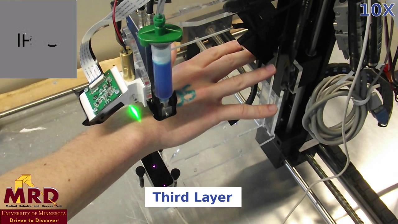 3D Bioprinting Directly Onto Moving Human Anatomy - YouTube