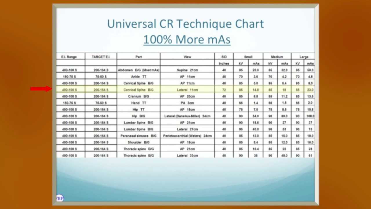Universal cr and dr technique charts youtube