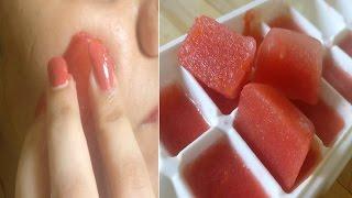 Tomato Lemon Ice cubes for Skin whitening, Pimples,dark spots, blemish, suntan, Acne