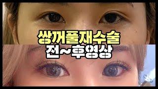 [부산/서면]눈재수술 전후 영상