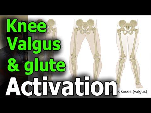 Valgus Knee & Glutes Activation