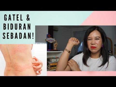Cara Mengatasi Biduran & Gatal-Gatal (Urticaria) + Giveaway!