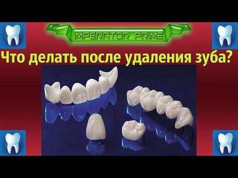 Что делать после удаления зуба?Чем полоскать?Что принимать?