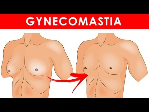 Home Remedies for Gynecomastia (Enlarged Breasts in Men)