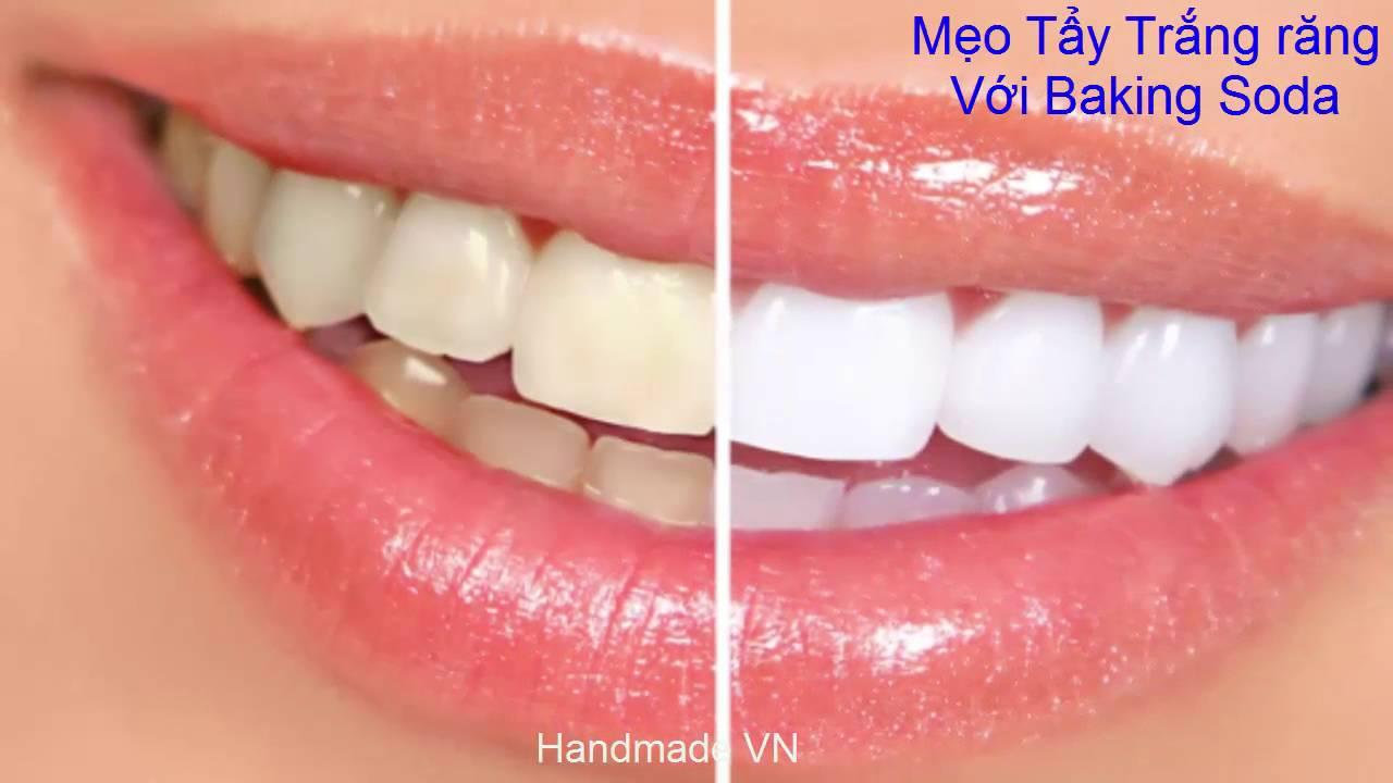 Làm trắng răng – Mẹo Làm Trắng Răng Với Baking Soda