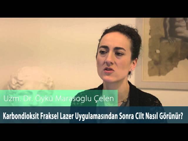 Dr.Öykü Maraşoğlu Çelen - Co2 Fraksel Lazer Uygulamasından Sonra Cilt Nasıl Görünür ?