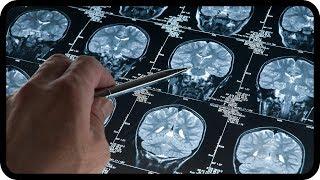 Parkinson und Alzheimer unheilbar? Nein! Neue