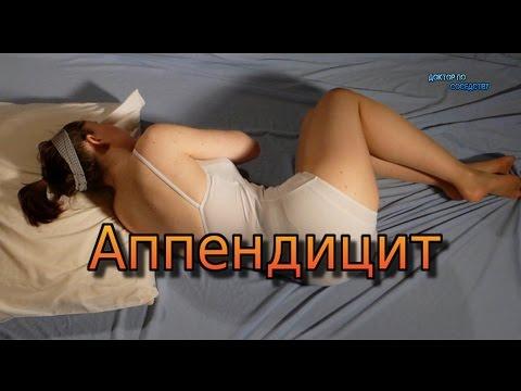АППЕНДИЦИТ / APPENDICITIS