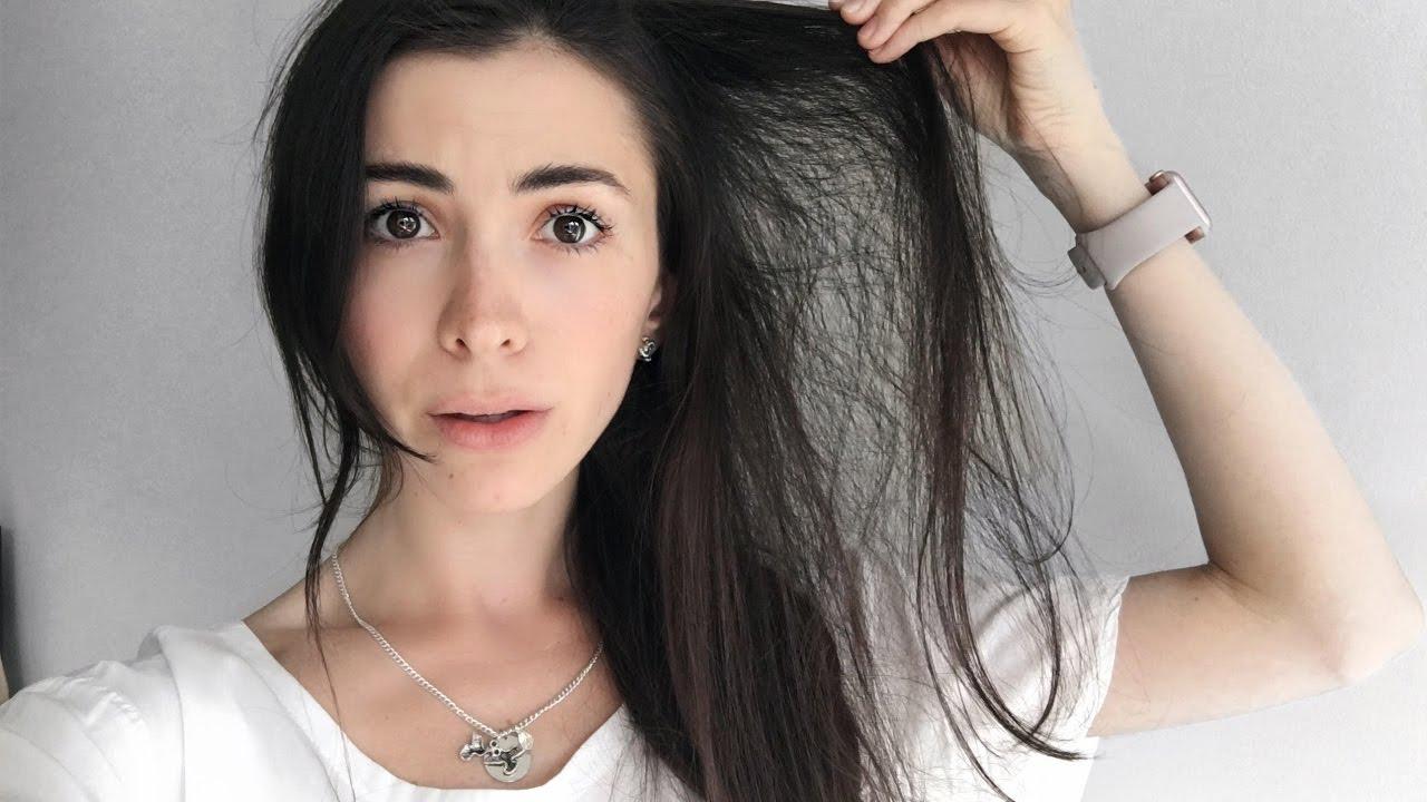 hair loss story - fought
