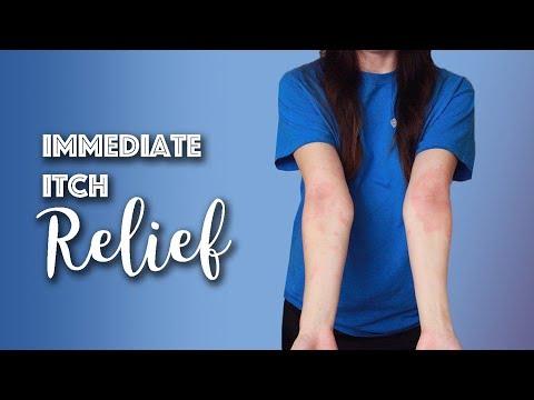 Immediate Eczema Itch Relief   Michelle Mills