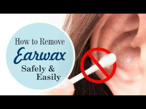 Remove ear wax with salt water youtube remove ear wax with salt water solutioingenieria Images